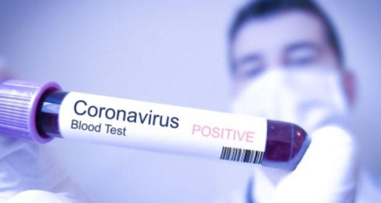 سيدي بوزيد : تسجيل اصابتين جديدتين بفيروس كورونا