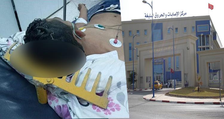 رفش جمجمة نابل بن عروس مستشفى الحروق والاصابات البليغة