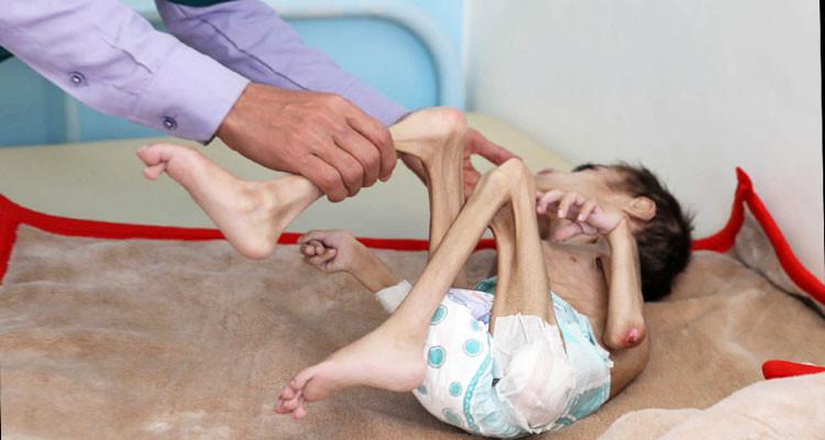 الجوع ينهش جسد طفل الـ7 سنوات ويحوله إلى مشلول طريح الفراش